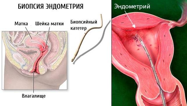 Где делают биопсия эндометрия что это такое