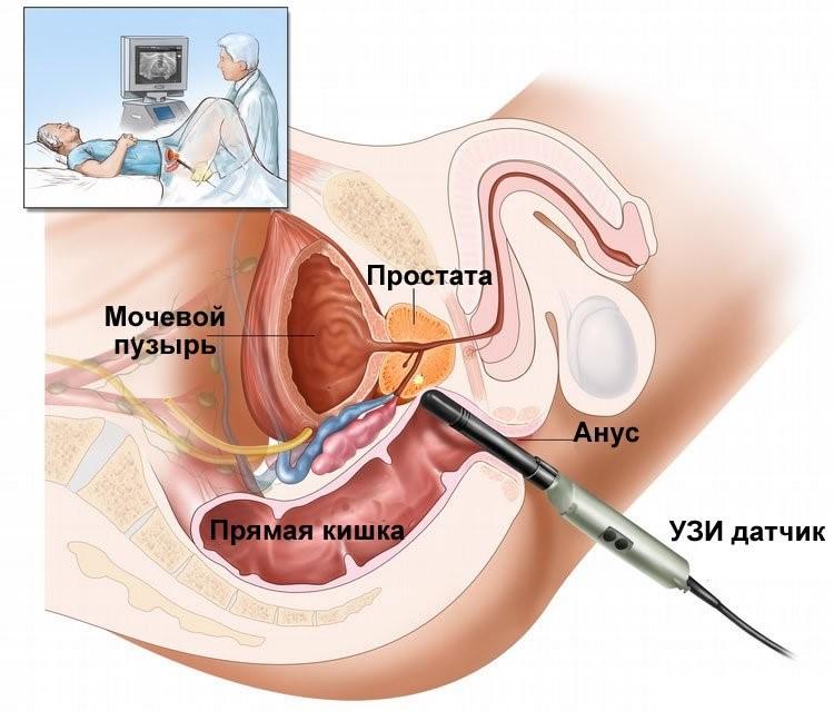 Трузи предстательной железы+цдк